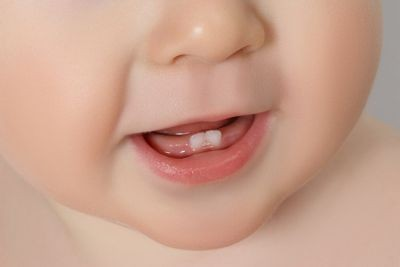 Dental Care For Baby Teeth and Gums