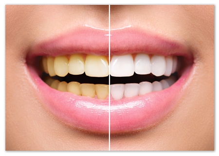 Teeth Whitening Milton Ontario